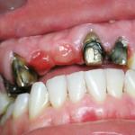 Опорные зубы после снятия старых металлокерамических коронок