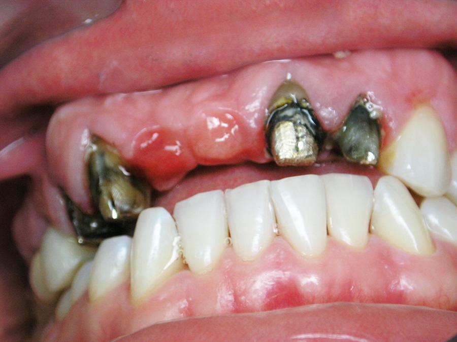 Зуб Опорный
