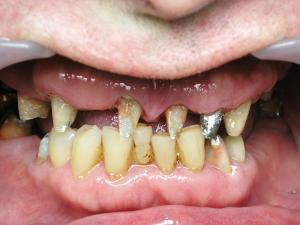 Сложное металлокерамическое протезирование верхней и нижней челюстей